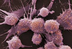Prostate cancer cells  Source: WebMD