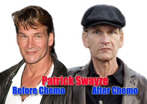 Patrick Swayze: Before and After Image