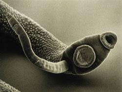 Tapeworm Image